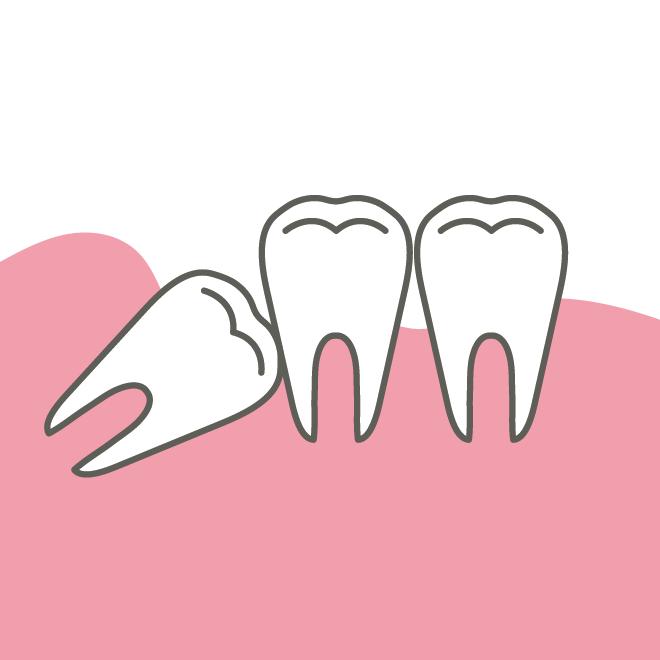 親知らずの歯のイラスト | 商用フリー(無料)のイラスト素材なら ...