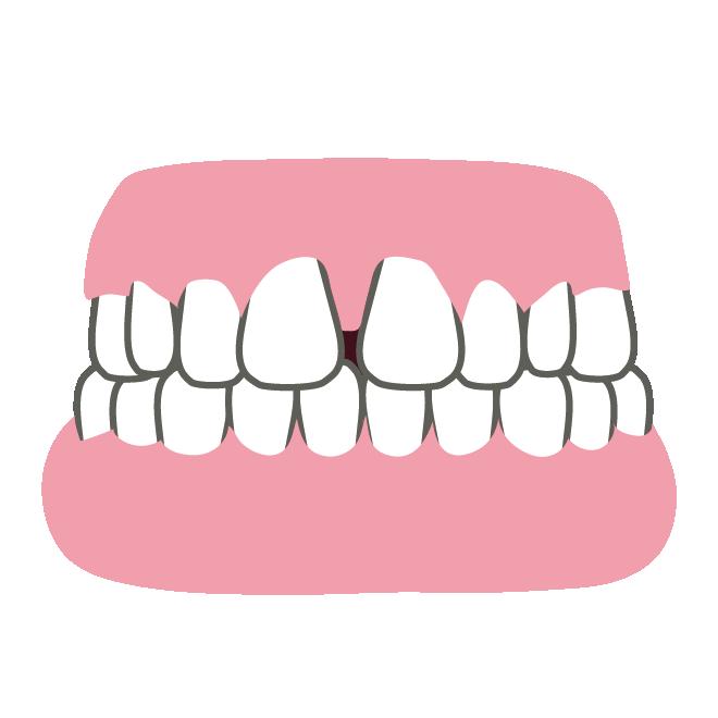 すきっ歯のイラスト 商用フリー無料のイラスト素材ならイラスト